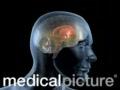 Parkinson disease animated video