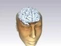 MRI scan of human head 3D