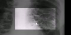 Bronchiectasis on a Chest  X-ray