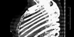Chest - bone CT