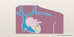 3D Animation of a pacemaker Implantation