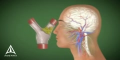 3D animation of Stroke