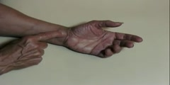 Self Test of Carpal Tunnel Syndrome