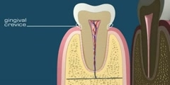 Medical Animation of a tooth anatomy