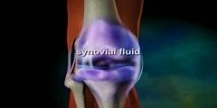 Animation of Osteoarthritis