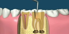 Animation of  tooth filling  and Capping