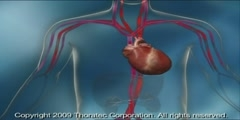 Circulatory mechanical support