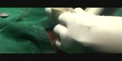 Quick Airway Access via Cricothyrotomy
