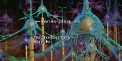Effects of Alzheimer disease