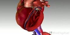 3D Animation Congestive Heart Failure