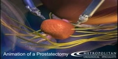 Prostatectomy via the da Vinci Robotic surgery  animation