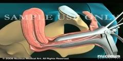 Uterus endometrial biopsy