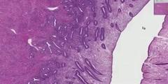 Proliferative ndometrium histology