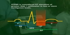 Placement of ECG Leads