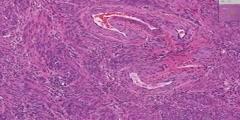 Uterus histology