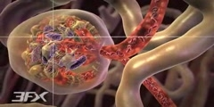 Animation 3D of diabetic nephropathy