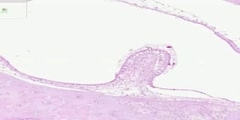Part 2 of the histology of the Inner Ear