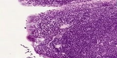 Pharyngeal Tonsil Histology