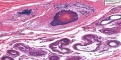 Skin Appendages Histology