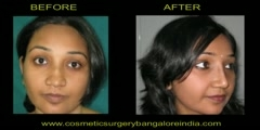 India and Bangalore nose reshaping (Rhinoplasty)