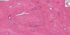 Dense Bone Histology