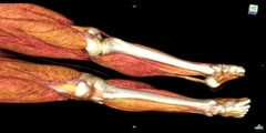 HD Whole Body CT scan
