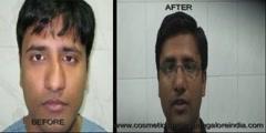 Bangalore, India: Correction of a deviated nose
