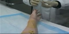 Video of peripheral venous access technique