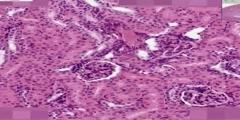 Kidney Histology