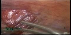 Laparoscopic varicocelectomy treatment