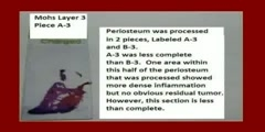 Surgery Video Vignettes Histopathology Video