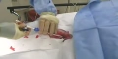 Pulmonary artery catheter and central venous catheter placement CVP