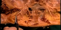 Microsurgical Anatomy of the Orbit
