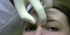 Injection Technique of Botox