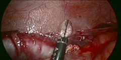 Laparoscopic Appendectomy HD Video