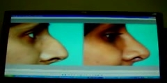Qatar based Surgeon in Rhinoplasty