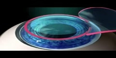 LASIK Surgery Procedure Video