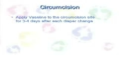 Careful Steps For a Circumcised Baby
