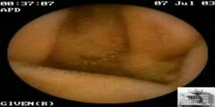 Angioectasias in Small Intestine