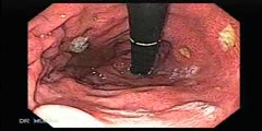 Case of Multiple Ulcers Gastric Ulcers