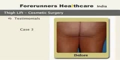 Thighplasty in India - Recontour your thighs in a fine shape with outpatient care