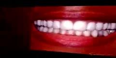 No more teeth space