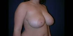 Reducing Breast Size by Surgery