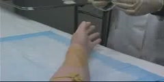 Peripheral Venous Access Video