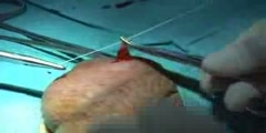 Vasectomy procedure video for men
