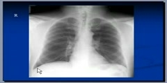 Pneumonia radiologic anatomy