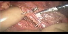 Laparoscopic Nephrectomy Recovery