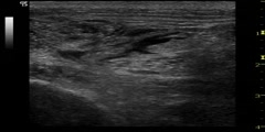 UltraSound Guided Sciatic Nerve Block