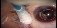 Intravitreal TSA injection Treatment
