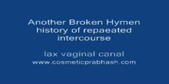 Hymenoplasty Hymen Repair Surgery in India